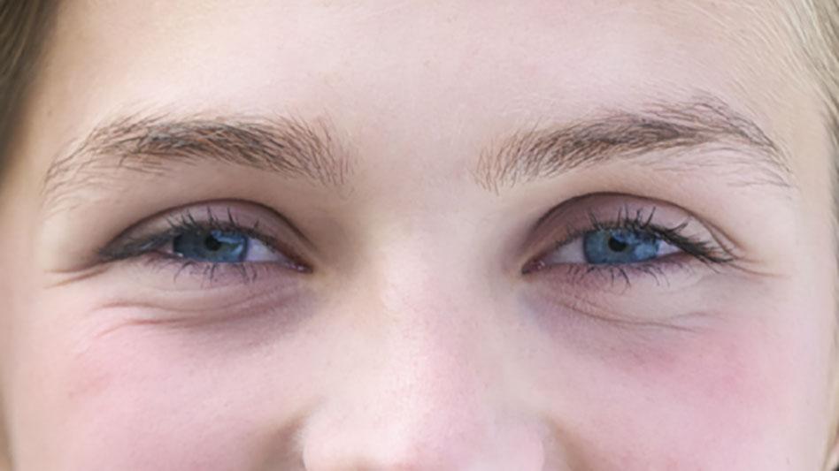 La blefaroplastica per ridare fascino al nostro sguardo