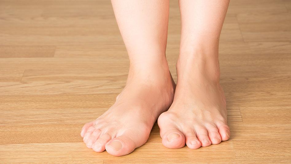 La tecnica miniinvasiva percutanea nella correzione dell'alluce valgo e delle deformità del piede