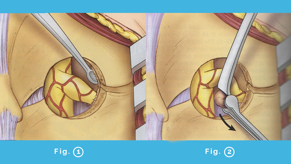 Foraminotomia cervicale posteriore