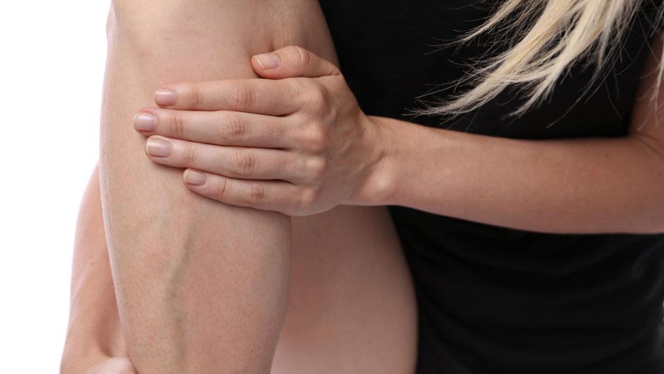 Terapia della malattia varicosa: l'utilizzo di colle biocompatibili